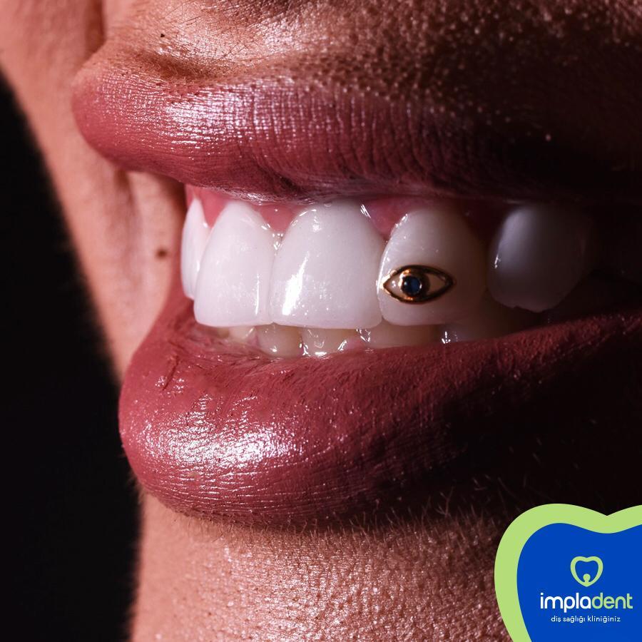 altın diş mücevheri