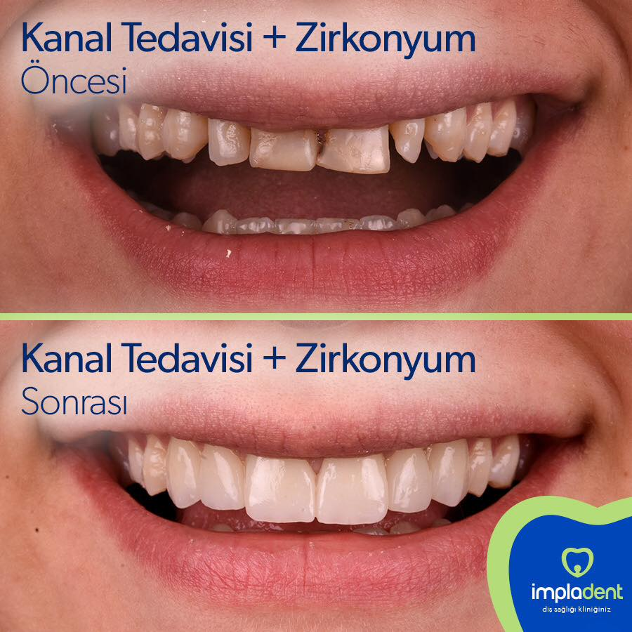 endodonti, kanal tedavisi