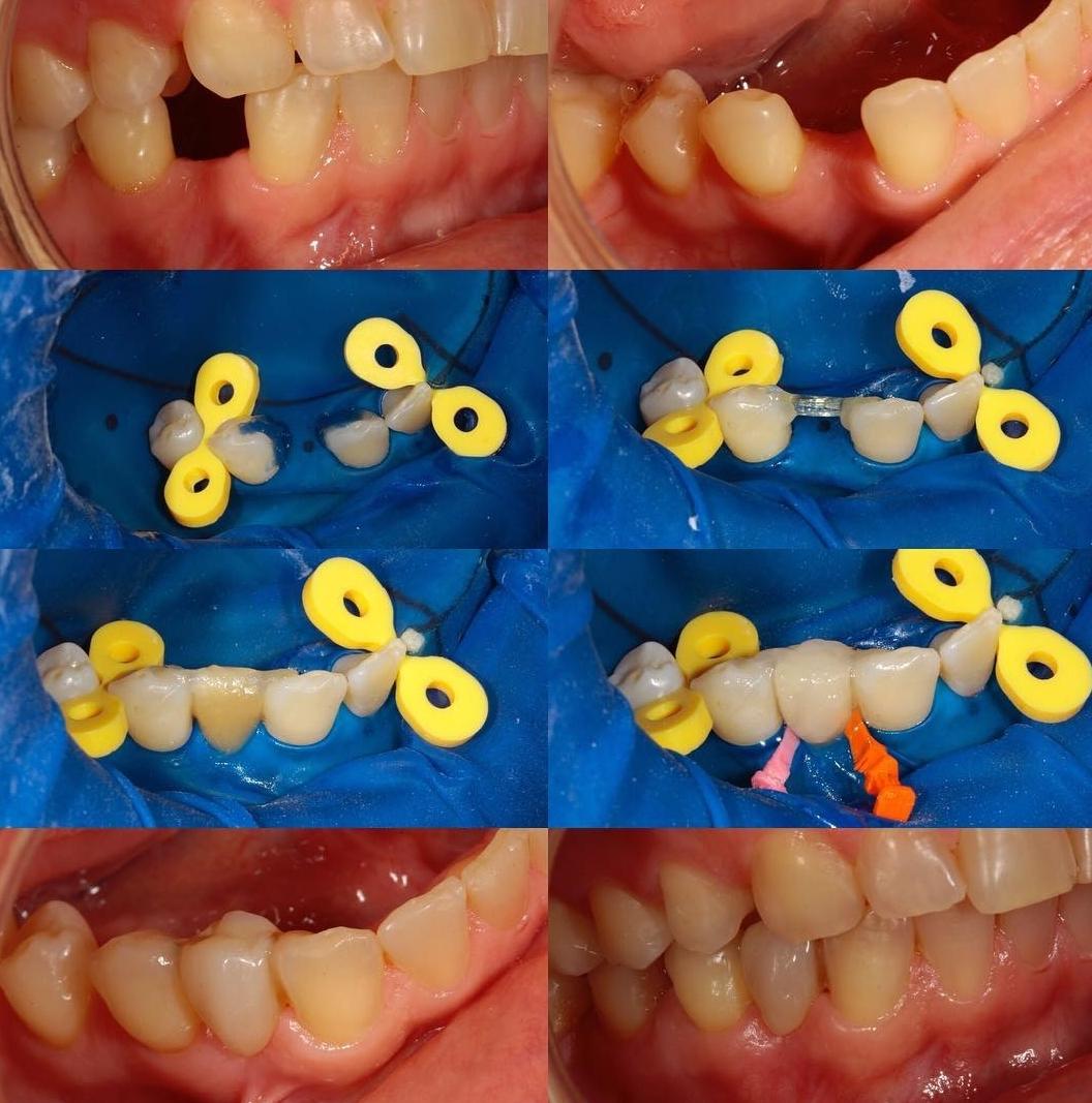 diş eksikliği