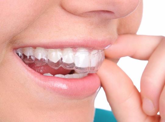 Invisalign ile Ortodontik Tedavi