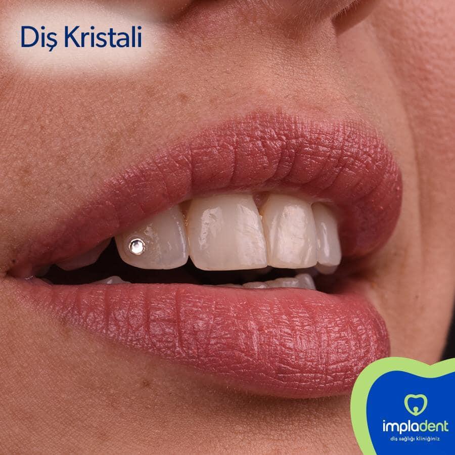Diş kristali - pırlantası