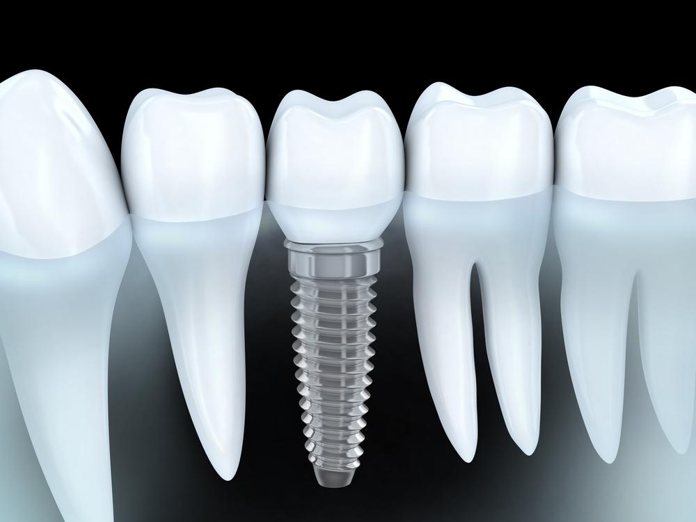 tek diş eksikliği implant