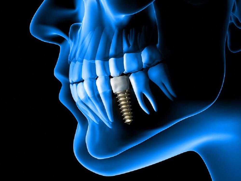 Dental İmplant, Diş İmplantı